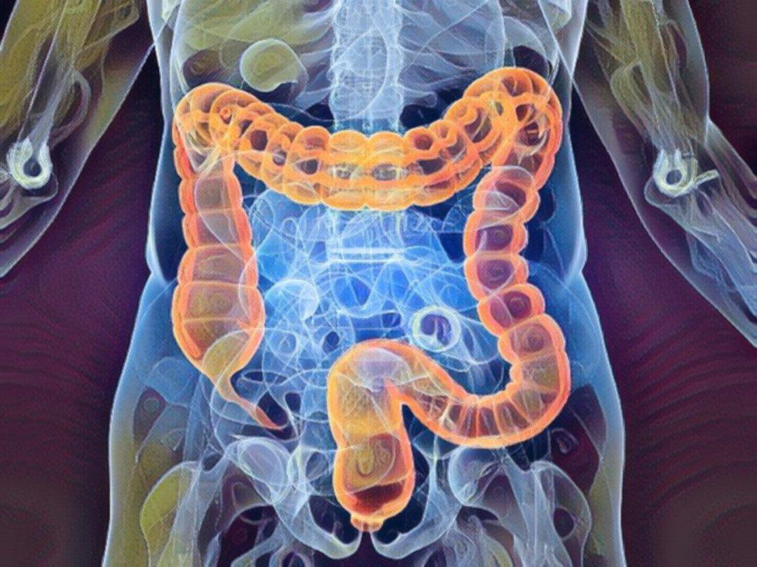 Tumore-colon