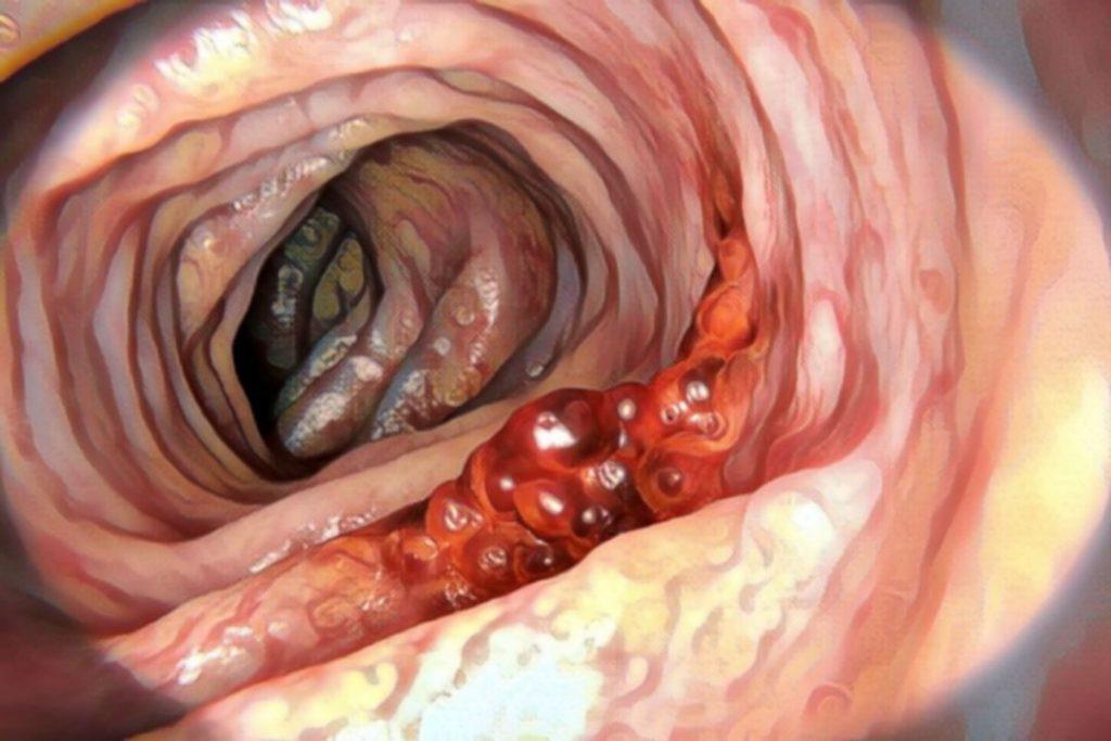 colon-retto-tumore